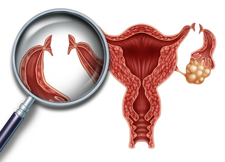 Tubal ligation reproduction medical procedure for female sterilization as a uterus with incisions on the fallopian tubes to block the egg from being fertilized as a fertility and gynecology medicine concept with 3D illustration elements. Stock Illustration - 65574656