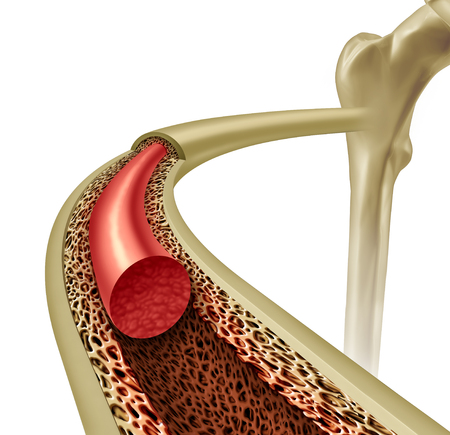 Bone Marrow health and osteoporosis concept inside a healthy anatomy with strong normal tissue as an icon for orthopedic and an orthopedist with 3D illustration elements.