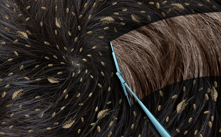piojos: Removing lice as a medical concept with louse insects on human hair as an infestation of parasitic nits or eggs hatching with a wiper wiping away the parasites with 3D illustration elements. Foto de archivo