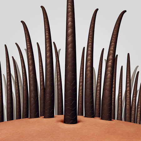 Hair anatomy close up as a human skin scalp with a shaft emerging as a dermitology medical symbol as a 3D illustration.