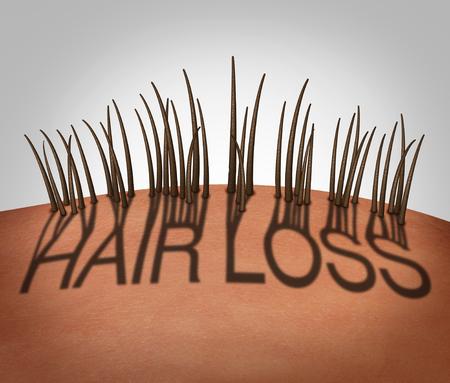 Concepto médico de la pérdida y calvicie del pelo como una rayita del retroceso con el texto como sombra con folículos del adelgazamiento en una cabeza calva en su mayoría como ilustración 3D. Foto de archivo - 72446541