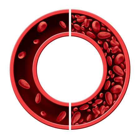Anemia and anaemia medical diagram concept as normal and abnormal blood cell count and human circulation in an artery or vein as a 3D illustration isolated on a white background.
