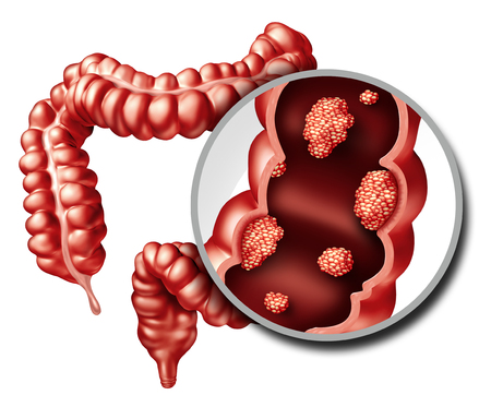 Dubbelpunt of colorectal kankerconcept als medische illustratie van een dikke darm met een kwaadaardige tumor de groeiziekte van het spijsverteringssysteem als 3D illustratie.