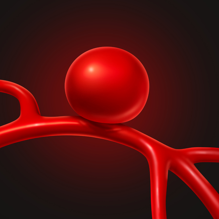 Aneurysm medical concept as a medicine symbol for symptoms and diagnosis of a blood vessel that is bulging into the shape of a balloon as a risk for rupture as a 3D illustration.