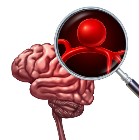 Brain aneurysm or cerebral aneurysms medical disorder concept as a magnification of a human thinking organ with a blood vessel with an inflammation symbol as a risk of rupture as a 3D illustration.