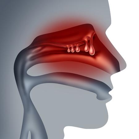 비강 붓기 및 인간의 sinuses로 성장 비강 폴립 의료 개념 3D 그림 스타일에서 혼잡 증상 기호.