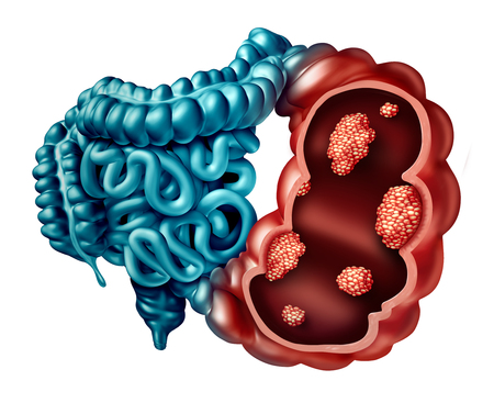 Colon cancer concept as a human intestine disease with forced perspective with microscopic malignant tumor inside the human anatomy as a 3D illustration. Reklamní fotografie