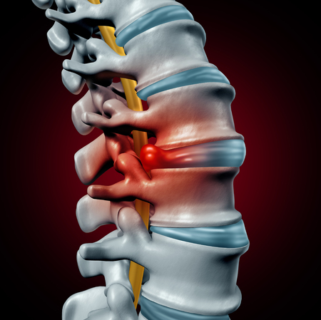 Human herniated disk concept and spine pain diagnostic as a human spinal system symbol as medical health problem and anatomy symbol with the skeletal bone structure and intervertebral discs closeup as a 3D illustration. Stock Photo