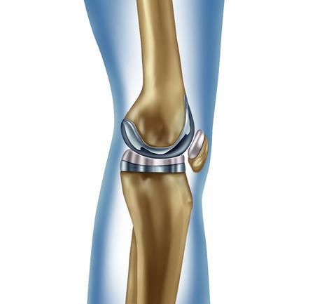 Concept médical d'implant de remplacement du genou comme anatomie d'une jambe humaine après une chirurgie prothétique comme symbole de traitement d'une maladie musculo-squelettique pour l'orthopédie avec des éléments d'illustration 3D sur fond blanc. Banque d'images - 84930391