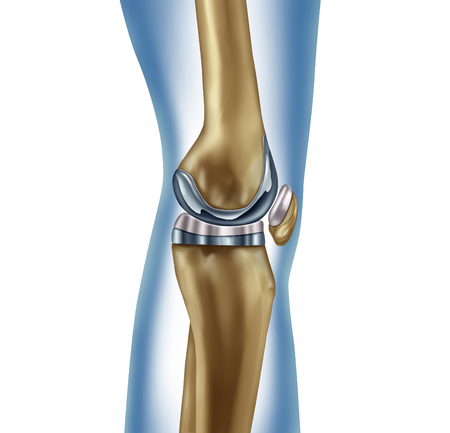 Replacement knee implant medical concept as a human leg anatomy after a prosthetic surgery as a musculoskeletal disease treatment symbol for orthopedics with 3D illustration elements on white.