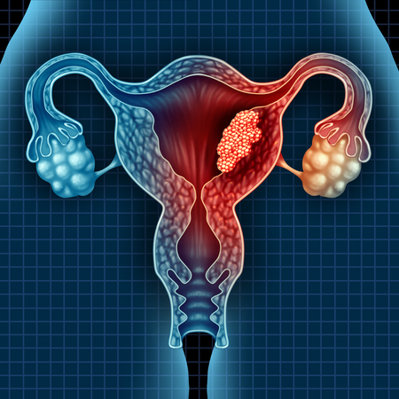 Cáncer de útero y tumor maligno endometrial como un concepto médico uterino como células en crecimiento peligrosas en un cuerpo femenino que ataca el sistema reproductivo como un símbolo del diagnóstico y síntomas del tratamiento de la enfermedad cervical con elementos de ilustración 3D.