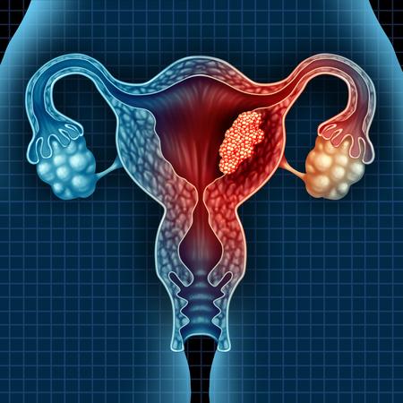 Il tumore dell'utero e il tumore maligno endometrico come concetto medico uterino come cellule pericolose in un corpo femminile che attacca il sistema riproduttivo come simbolo della diagnosi e dei sintomi di trattamento delle malattie cervicali con elementi di illustrazione 3D.