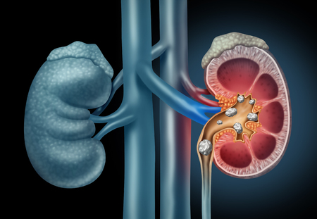 Human Kidney stones medical concept as an organ with painful crystaline mineral formations as a medicine symbol with a cross section with 3D illustration elements. Stock Photo