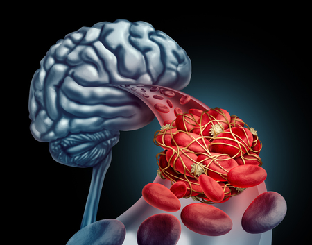 Blood clot brain medical concept as 3D illustration blood cells blocked by an artery blockage thrombus causing a blockage of blood flow to the neurology anatomy in a black background. Archivio Fotografico