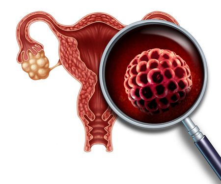 Early pregnancy blastocyst implanted inside a human uterus as a fertilization medical concept as an implantation and reproductive cell division icon in reproduction representing anatomy fertility success symbol in a 3D illustration. Stock Photo