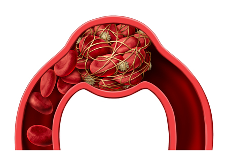 Blood clot disease symbol and thrombosis medical 3D illustration concept as a group of human blood cells clumped together by sticky platelets and fibrin creating a blockage in an artery or vein as a health disorder.