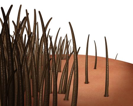 Haaruitval concept geïsoleerd en terugwijkende haarlijn en verliezende follikels resulterend in kaalheid of kaal hoofd geïsoleerd op een witte achtergrond als een 3D renderen. Stockfoto - 88130332