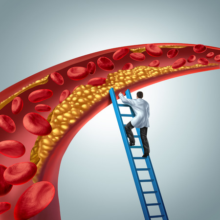 Cholesterol medical diagnosis concept as a doctor investigating atherosclerosis or arterial plaque clogging an artery with 3D render elements. Stockfoto