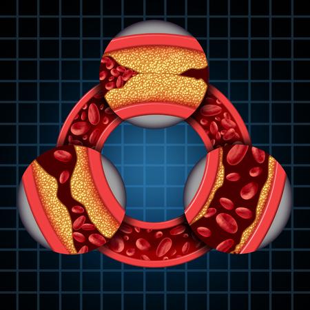 Los síntomas de la enfermedad de la arteria representan el concepto médico coronario como una vena circular con formación gradual de placa que da como resultado arterias obstruidas y aterosclerosis con un diagrama tridimensional de la anatomía humana que muestra los riesgos de acumulación de colesterol.