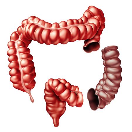 結腸切除術結腸手術医療の手順 3 D 腸と大腸の一部を削除します。 写真素材