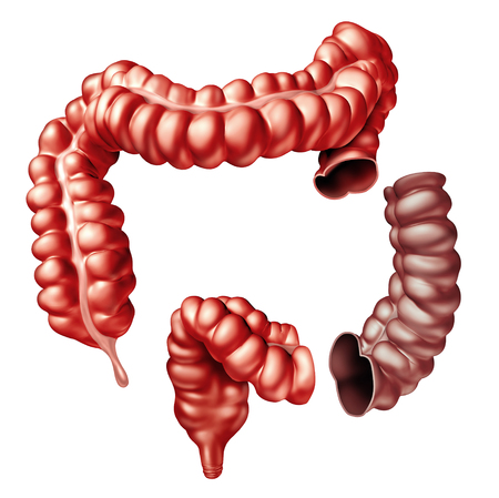 Colectomy colon surgery medical procedure removing a portion of the large intestine as a 3D intestine. Reklamní fotografie - 91613605