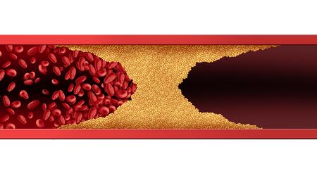 コレステロール蓄積が詰まる血管ヒト動脈疾患を3Dイラスト要素で詰まらせるか、循環を妨げる。