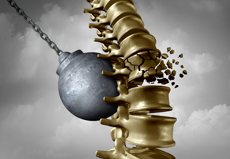 Spine pain and spinal ache and bachache medical disease symbol as a wrecking ball hitting a human skeleton as a back medicine icon as a 3D illustration.
