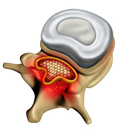 3D 그림으로 압축 된 척추 신경 의료 개념을 일으키는 인간의 척추에 퇴행성 질병으로 척추 협착증.