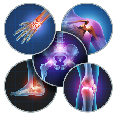 Human painful joints concept with the skeleton anatomy of the body with a group of sores with glowing joint pain and injury or arthritis illness symbol for health care and medical symptoms. Stock Photo