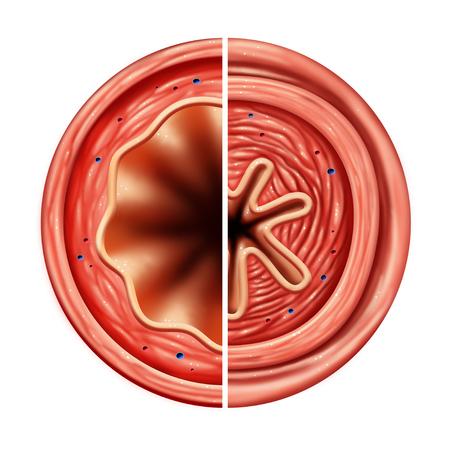 L'asthme bronchique constriction concept de problème de respiration causé par le resserrement du muscle respiratoire et le gonflement du passage de l'air avec des éléments d'illustration 3D. Banque d'images - 94977938