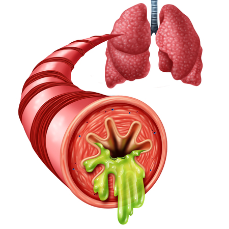 Bronchitis anatomy concept as an inflammation of bronchial tube lining with thick mucus secreted as a chest cold as a 3D illustration elements. Banque d'images