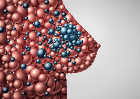 Carcinoma mammario metastatico che si è diffuso ad altre parti del corpo umano come un'illustrazione 3D astratta con tumori in uno stadio avanzato della malattia. Archivio Fotografico - 94977947