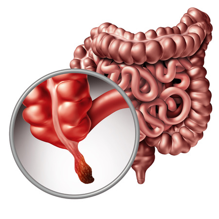 Appendicitis and appendix inflammation disease concept as a close up of human intestine anatomy as a 3D illustration. Фото со стока