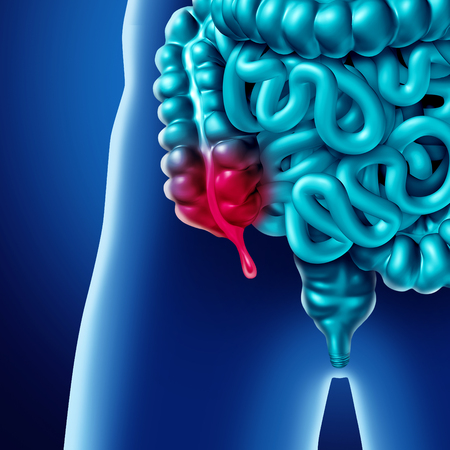 Appendix pain and appendicitis inflammation disease concept as a close up of human intestine anatomy as a 3D illustration.