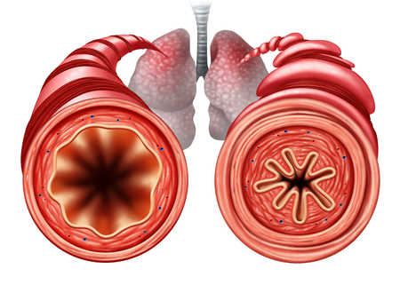 Asthma diagram as a healthy and unhealthy bronchial tube with a constricted breathing  problem caused by respiratory muscle tightening with 3D illustration elements. Stock Photo