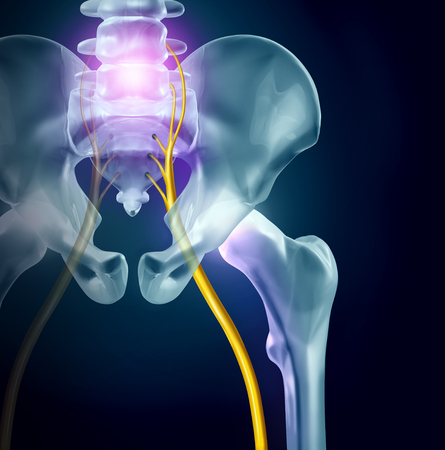 Sciatica pain symptoms and diagnosis medical concept as a disease causing physical problems with 3D illustration elements