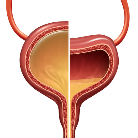 Bladder as a normal and overactive urinary organ comparison representing the involuntary loss of urine concept as a healthy and unhealthy condition with 3D illustration elements.