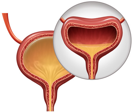 Overactive bladder and involuntary loss of urine concept as an uncomfortable condition in a human organ with 3D illustration elements.