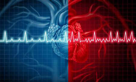 Concepto de ritmo cardíaco normal o anormal de fibrilación auricular y anormal como un trastorno cardíaco como un órgano humano con monitorización ecg saludable y no saludable en un estilo de ilustración 3D.