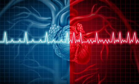 Vorhofflimmern und normales oder anormales Herzfrequenz-Rhythmuskonzept als Herzstörung als menschliches Organ mit gesunder und ungesunder EKG-Überwachung in einer Art der Illustration 3D.