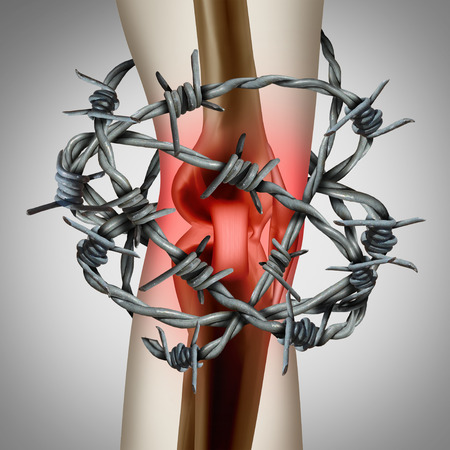Knee pain and painful joint as a medical illustration of a human skeleton showing a sports injury or a physical accident with barbed wire with 3D illustration elements.