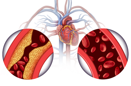 Chelation therapy and heart disease treatment concept as an alternative medicine for human blood circulation disease with 3D illustration elements. 스톡 콘텐츠