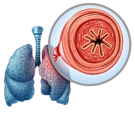 Enfermedad pulmonar obstructiva crónica EPOC como concepto médico para enfermedad pulmonar y enfisema con elementos de ilustración 3D.