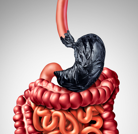 Human digestion problem as a stomach shaped as a garbage bag with the intestine organ as a symbol for indigestion pain in the digestive system as a medical illustration.