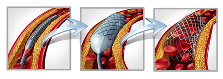 Coronary stent and angioplasty concept as a heart disease treatment symbol diagram with the stages of an implant procedure in an artery that has cholesterol plaque blockage being opened for increased blood flow as a 3D illustration.