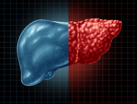 Fatty liver disease and hepatic steatosis body part as a medical health care concept of the digestive system anatomy and vital organ for digestion functions in a 3D illustration style.