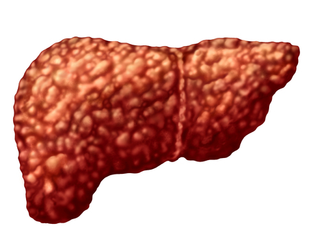 Fatty liver and hepatic steatosis body part isolated on white as a medical health care concept of the digestive system anatomy and vital organ for digestion functions in a 3D illustration style.