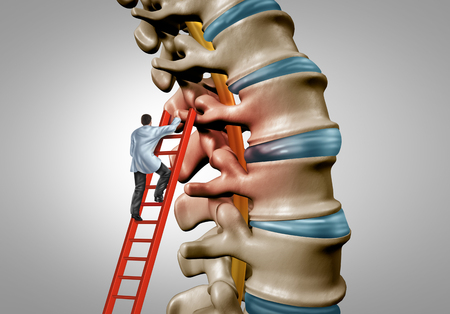 La terapia de la columna vertebral y el concepto de cirugía médica de estenosis espinal como una cirugía de enfermedad degenerativa en las vértebras humanas como un médico que trata y diagnostica la anatomía con elementos de ilustración 3D. Foto de archivo