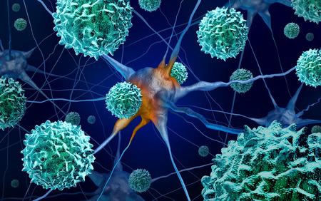 AFM disease or acute flaccid myelitis medical concept as a neurologic condition representing enterovirus or polio virus as a 3D illustration.