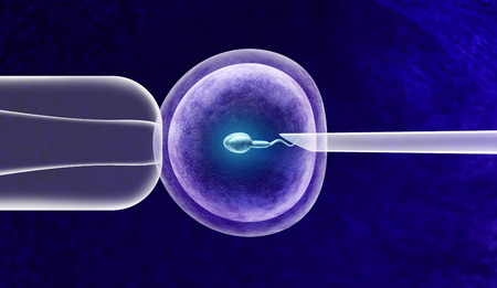 In vitro fertilization or IVF fertility treatment and artificial insemination with a human egg cell and sperm helping with infertility issues as a 3D illustration. Stock Photo